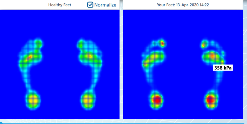 Plantar Pressure Map Screenshot
